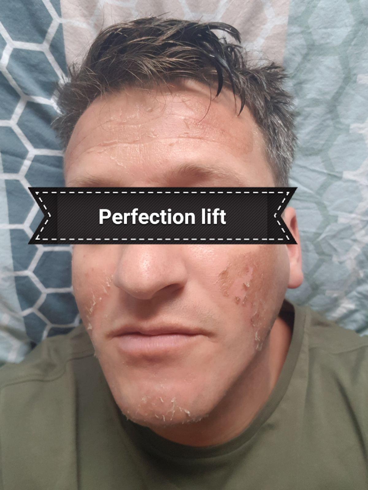 Perfection lift peeling
